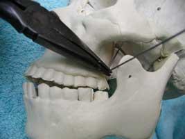 installing-a-servo-in-a-bucky-skull-b7